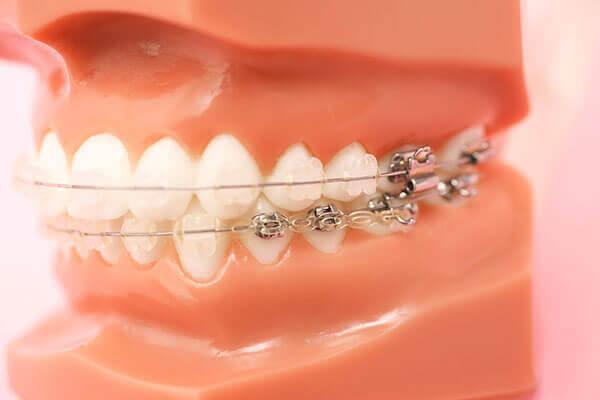 天然歯を残すことを考えた非抜歯で行う成人矯正歯科治療。